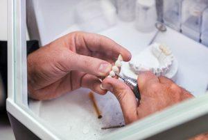 prosthetic-teeth